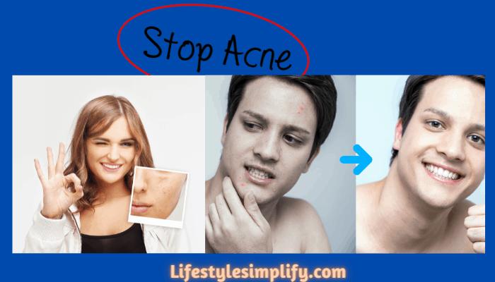 Deyga Anti Acne Kit